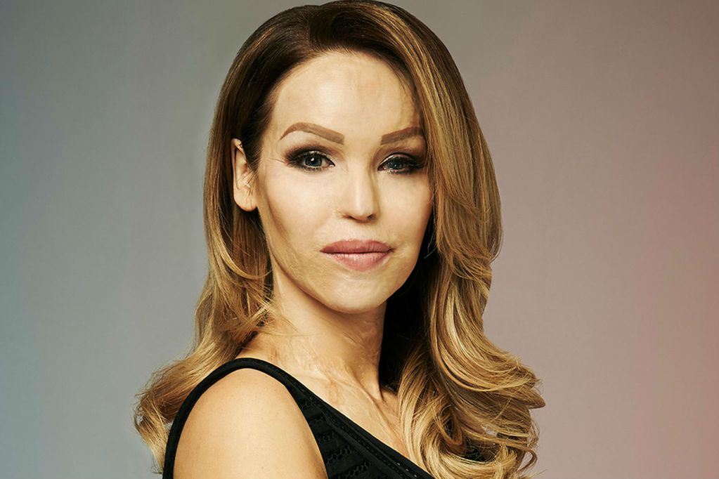 Katie Piper Brings Her Inspirational What S In My Head